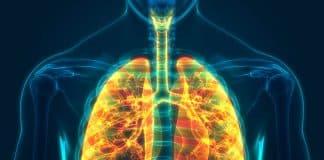 Aerosol de vaporizador y expresión génica en tejido pulmonar humano en comparación con el humo de cigarrillos